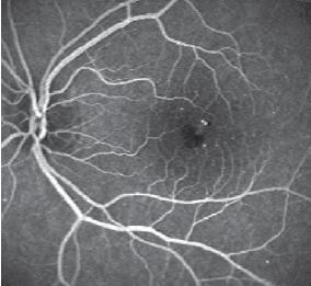 1. Fluorangiografia di RD lieve