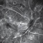 1. Fluorangiografia di RD proliferante