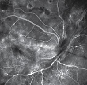2. Fluorangiografia di RD proliferante